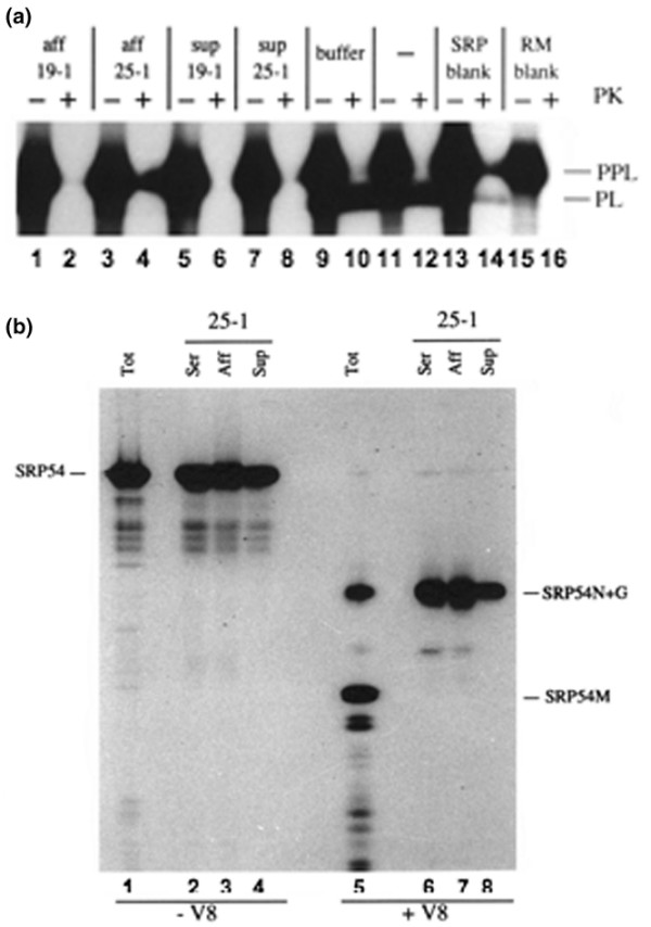 Distinct autoantibodies against the SRP54N and SRP54G domains can both inhibit secretory protein translocation into the ER. (a) The secretory protein preprolactin (PPL) was synthesized as a 35 S-radiolabelled precursor in vitro in the presence of salt-washed rough microsomes (RM) and signal recognition particle(SRP) that was preincubated with affinity-purified autoantibodies from sera 19-1 or 25-1 on SRP54 amino acids 1–166 (Aff), with the flow-through fractions (Sup) or with buffer alone. SRP without preincubation (lanes 11 and 12) and translations without added SRP (lanes 13 and 14) or RM (lanes 15 and 16) were used as positive and negative controls, respectively. Samples were treated with <t>proteinase</t> K or not (+ or - PK) and were analysed by SDS-PAGE on 10–15% gels and by fluorography. (b) Serum 25-1 contains two distinct anti-SRP54 activities. SRP54 was synthesized as a 35 S-radiolabelled protein in vitro and either digested with V8 protease (+ V8) or incubated in the absence of protease (- V8) as described previously [17]. An aliquot of both digested and undigested material was loaded onto the gel directly (Tot). Both digested and undigested material were immunoprecipitated using 1 μl serum 25-1 (Ser), using 1 μl affinity-column flow-through (Sup) or using 1 μg affinity-purified autoantibodies from serum 25-1 (Aff). Samples were analysed by SDS-PAGE on 10–15% gels and by fluorography.