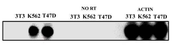 Southern blot analysis of RT-PCR products. RT-PCR and no RT controls were carried out on total RNA from K562 cells, T47D (hCTR positive) and 3T3 (hCTR negative) cells employing hCTR and actin specific oligos. PCR products were size fractionated on a 1 % agarose gel and Southern blotted. hCTR and actin specific 32 P end labelled probes were hybridized to blot. These results are representative of 3 independent experiments all giving similar results.