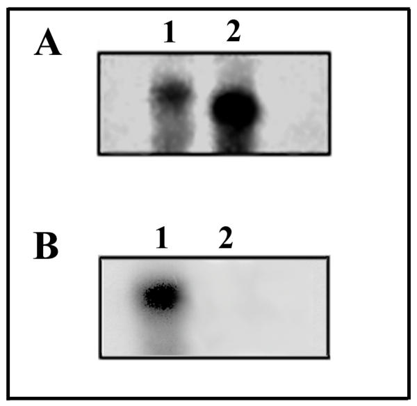Southern blot analysis on gel purified K562 RT-PCR products. ( A ) RT-PCR products on total RNA from K562 cells employing hCTR specific primers were size fractionated on a 2% agarose gel. Two bands, corresponding in size to hCTR 1a and hCTR 1b , were individually purified and re-run on a 2% agarose gel followed by Southern blot analysis. The blot was hybridized with a 32 P end-labelled probe common to hCTR 1a and hCTR 1b . ( B ) Blot in Fig. 2A was stripped of probe and re-hybridized with a 32 P end-labelled probe corresponding to 16 amino acid insert in hCTR 1b isoform. These results are representative of 2 independent experiments giving similar results.