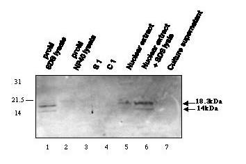 Natural Lepp12 protein is non-secreted protein located in promastigote nucleus. Western blotting was performed using immunopurified anti-Lepp12 antibodies (at 2 microg/ml) on total promastigote 3 % SDS lysate (positive control, lane 1), 20 % NP40 lysate (lane 2), cytosol (s1, lane 3), cell membranes (c1, lane 4), nuclear extract prepared as described in Methods section before (lane 5) or after (lane 6) 3% SDS lysis, and PEG concentrated culture supernatant (lane 7). Proteins were prepared from 1.6 × 10 8 cells. In each lane, 30 microg of proteins were separated on a 14% polyacrylamide SDS-gel, corresponding to an equivalent of 4 millions (lane 1), 8.6 millions (lane 2), 5.3 millions (lane 3), 4.8 millions (lane 4), 18.5 millions (lane 5), 12 millions (lane 6) and 2.2 millions (lane 7) promastigotes. Molecular mass markers are indicated in kDa.
