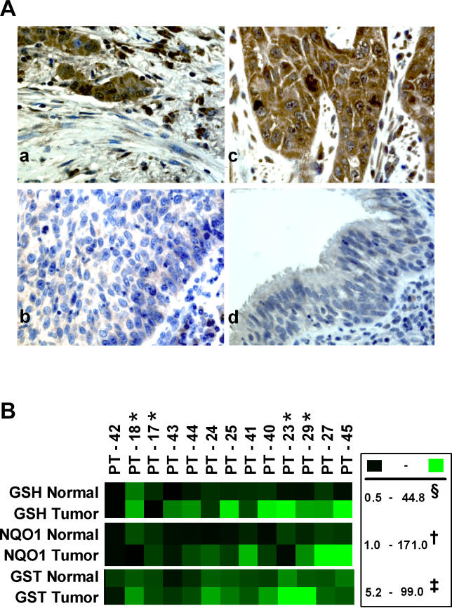 Dysfunctional KEAP1–NRF2 Interaction in NSCLC Tumors (A) Immunohistochemical analysis of NRF2 in NSCLC tissues. Part a shows a patient (PT-18) with mutation in KEAP1 showing strong nuclear and cytoplasmic staining. Part b shows a patient negative for mutation (PT-28) showing weak cytoplasmic staining. Part c shows a patient negative for mutation (PT-20) showing increased nuclear and cytoplasmic staining in tumor tissue. Part d shows weakly staining normal bronchus from the same patient (PT-20). (B) Total GSH and enzyme activities of NQO1 and total GST in NSCLC and matched normal tissues. Raw data for the heat maps are presented in Table S4 . *, samples harboring KEAP1 mutation; §, nmol/mg protein; †, nmol DCPIP reduced/min/mg protein; ‡, nmol of product formed/min/mg protein.