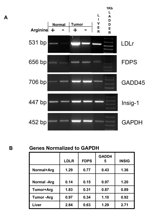 RT-PCR confirmation of selected rat hepatic gene expression in normal and tumor cells in response to 18 hr arginine deprivation . Semi-quantitative Reverse Transcription Polymerase Chain Reaction was used to assess relative expression of rat LDLr, farnesyl diphosphate synthase (FDPS), GADD45, Insig-1, and GAPDH for cells cultured with (+) or without (-) arginine, Adult liver served as a positive control. <t>DNase</t> treated total <t>RNA</t> was reverse-transcribed with and without (negative control) reverse transcriptase. A . Electrophoresis of PCR products was performed in 2% agarose, 1× TAE gel and visualized by ethidium bromide staining; 1 kb DNA marker was used to verify size of the PCR products. B . Densitometry of gel bands was assessed via LabWorks Software and values were ratioed to GAPDH to provide relative comparisons between Arginine + and Arginine - conditions.