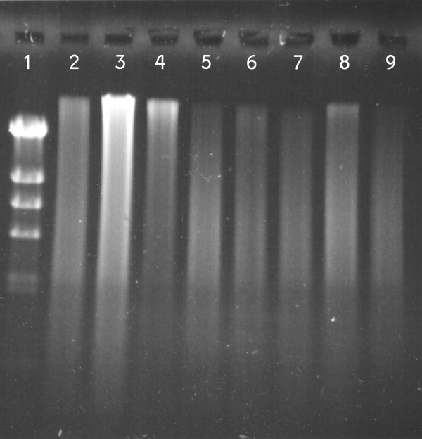Gel electrophoresis of Bst DNA polymerase amplification products . From left to right: (1) Lambda DNA-Hind III digested ladder; FFPE samples: (2, 3) normal lung 3 4; (4, 5) neuroblastoma xenografts LAN-5 SK-N-BE (2) and (6, 7) NSCLC 3 4; (8) Commercial DNA; (9) Negative control. Samples were analyzed in 0.5% agarose gel, stained with SYBR-green II. 10% by volume of the amplification product was used for the gel electrophoresis.