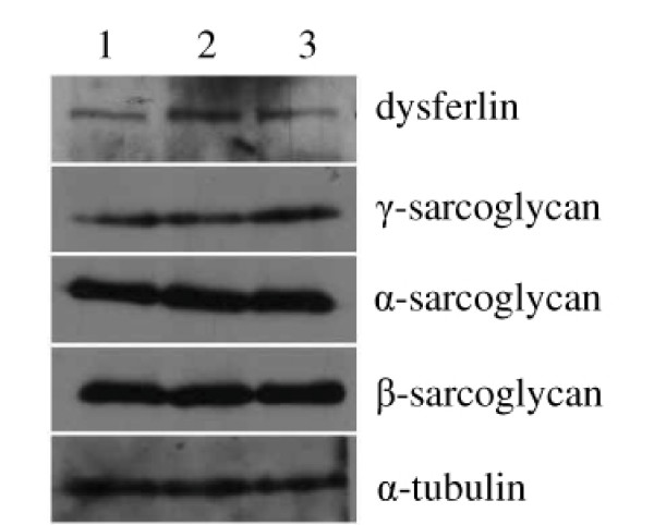 The expression analyses of α-, β-, <t>γ-sarcoglycan</t> and dysferlin protein in the muscles of patient by Western blot. The total proteins extracted from skeletal muscles of normal person (lane 1), relative normal muscle biopsies of patient IV-7 (lane 2), and dystrophic muscle biopsies of patient IV-7 (lane 3).
