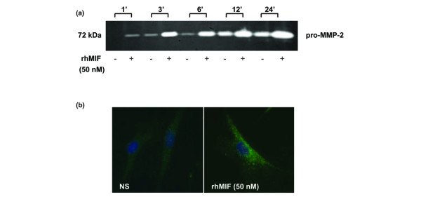 Matrix metalloproteinase (MMP)-2 upregulation by macrophage migration inhibitory factor (MIF) is time-dependent. (a) Using gelatin zymography of rheumatoid arthritis (RA) synovial fibroblast culture supernatants, we found MMP-2 upregulation, beginning after 1 hour and increasing continuously over a period of 24 hours. The results represent one of four individual experiments using cells from four donors. (b) Immunofluorescence staining of RA synovial fibroblasts for MMP-2 showed a strong perinuclear and discrete diffuse cytoplasmic expression after 1 hour of stimulation by MIF (50 nM; 400×). Results represent one of four individual experiments using cells from four donors. NS, nonstimulated; pro-MMP, pro-matrix metalloproteinase-2; rhMIF, recombinant human macrophage migration inhibitory factor.
