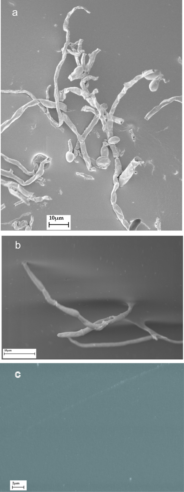 Scanning electron micrographs of biofilm formation . (a) F. solani (238-06) incubated with fresh ACUVUE lens and balanced salt solution for 48 h at 25°C on a rotator (180 rpm). (b) Close-up of the same isolate showing hyphal attachment to the lens surface (c) Disappearance of biofilm when preparation from (a) was treated with MoistureLoc for 4 h.