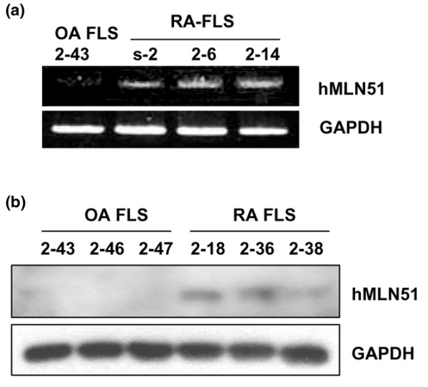 MLN51 expression is upregulated in rheumatoid arthritis FLSs compared with osteoarthritis FLSs. (a) Total RNA sample (1 μg) was extracted from three rheumatoid arthritis (RA) fibroblast-like synoviocytes (FLSs) and one osteoarthritis (OA) FLS with Trizol reagent. RT-PCR was performed with 5 ng of cDNA as a template and MLN51 -specific or GAPDH-specific primers. The band for OA FLSs resulted from one (2–43) of the three OA FLSs. (b) Western blot analysis of MLN51 in FLS samples. RA FLSs (2–18, 2–36 and 2–38) and OA FLSs (2–43, 2–46 and 2–47) isolated from each patient were seeded at 5 × 10 4 cells per well in a six-well plate. FLSs grown in high-glucose DMEM supplemented with 10% FBS were harvested, separated by 10% SDS-PAGE, transferred to a nitrocellulose membrane and then proved with anti-hMLN51 rabbit serum (1:1,000 dilution) and horseradish peroxidase-conjugated anti-rabbit IgG (1:5,000 dilution). Data in (a) and (b) are representative of three or four separate experiments.