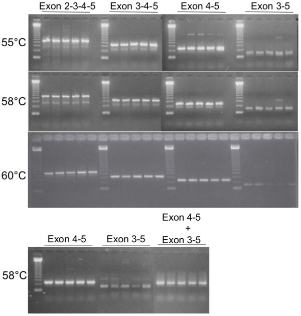 RT-PCR detection of SOD2 mRNAs. Primer sets were designed RT-PCR product spanning exon 2 through 5 (2–3–4–5), exon 3 through 5 (3–4–5), exon 4 to 5 (4–5) and exon 3 to 5 deleting 4 (3–5). Each set are tested in two T10/T10 homozygotes (first 2 lanes) and three T10/T9 heterozygotes (next 3 lanes) at three different annealing temperatures, 55°C, 58°C, and 60°C. Bottom panel shows the RT-PCR products with the primer sets that detect exon 4–5 only, 3–5 only and the combination of 4–5 plus 3–5.