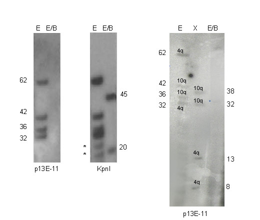 Nullisomic pattern . The patient shows four EcoRI bands after p13E-11 hybridization and none after double digestion with EcoRI/BlnI (nulisomic pattern). After hybridization with KpnI probe two BlnI resistant band are visible (45 and 20 kb): we can not guess the chromosomal origin of these alleles. To resolve the structure of the alleles we digested the sample with XapI enzyme which cuts the 4q-type repeats only (see Methods). After hybridization with p13E-11 we observed 4 XapI-resistant bands (38, 32, 13 and 8 kb): the 38 and 32 kb bands correspond to the EcoRI fragments of 42 and 36 kb fragments (XapI fragments are 4 kb smaller than EcoRI fragments). On the contrary the 13 and 8 kb fragments are stretches of the hybrid 4q alleles: the 62 kb EcoRI allele is composed by a BlnI-sensitive fragment (XapI-resistant) of 13 kb and a BlnI-resistant fragment of 45 kb (13+45 = 58 kb). The 32 kb EcoRI allele is composed by a BlnI-sensitive fragment (XapI-resistant) of 8 kb and a BlnI-resistant fragment of 20 kb (8+20 = 28 kb). The 4q variant alleles are represented in figure 5 (n.15 and 16). The FSHD 4q allele of 32 kb segregated also in other affected members of the family and its origin was confirmed by D4S139 probe (data not shown). * aspecific bands.