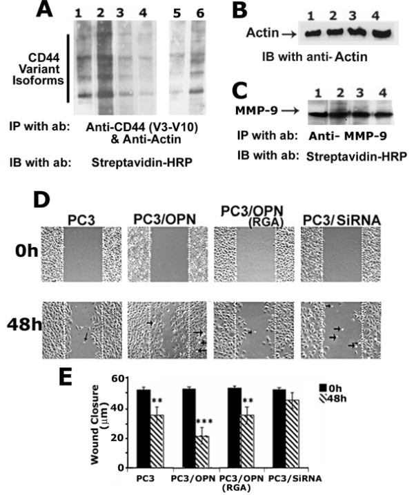 Analysis of CD44 surface expression and migration in different PC3 cell lines . A-C . Analyses shown in Figures A-C were performed in the following PC3 cell lines: PC3 (lane 1), PC3/OPN (lane 2), PC3/OPN (RGA) (lane 3), and PC3/SiRNA (lane 4). Cells were surface- labeled with NHS-Biotin and lysates were immunoprecipitated with an antibody to vCD44 (V3-10) (A) or MMP-9 (C). Also, as an internal control, a monoclonal antibody to actin was added to vCD44 immunoprecipitation. Actin immunoprecipitation was used as an internal control for normalization. Expression of variant forms of CD44 was observed in PC3 cell lines. Immunoprecipitation with a species-specific non-immune serum did not show any protein bands in the immunoblotting analysis (data not shown). Shorter exposure blot for PC3 (lane 5) and PC3/OPN (lane 6) is shown. The immunoblot shown in A was stripped and blotted with an actin antibody (B). Detection of surface expression of MMP-9 by immunoblotting with streptavidin-HRP is shown in C. No changes in the surface levels of MMP-9 indicate that biotinylation reaction was equally efficient in the indicated PC3 cell lines. The results represent one of three experiments performed. D and E: Wound healing assay. Phase-contrast micrographs of PC3, PC3/OPN, PC3/OPN (RGA) and PC3/SiRNA cells at 0 h and 48 h are shown. Results represent one of three experiments performed. Statistical analysis is provided as a graph at 0 h and 48 h in panel E. A significant increase in the migration of PC3/OPN, PC3, and PC3/OPN (RGA) cells was observed as compared with PC3/SiRNA cells. *** p