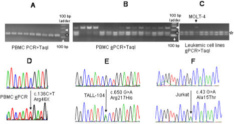SDHB mutations in genomic DNAs (gDNAs). A. Taq I RE digestion of PCR-amplified exon 2 shows no evidence of undigested mutant DNAs at 260 bp size (pointed by an arrow head). Taq I RE digestion products of the wild-type DNA co-migrate at sizes of 128 and 132 bps (denoted by a star). B. Gel electrophoresis of Taq I RE-digested (mutation) enrichment PCR ( e PCR) products shows variable amounts of mutant gDNAs at 233 bp size (pointed by an arrow head), which are confirmed to be primarily composed of c.136C > T by sequencing ( Table 1 ). Taq I digestion of wild-type e PCR products gives two bands at sizes, 101 and 132 bp (shown by a star). C. e PCR analyses of leukemic cell lines demonstrate the presence of mutant gDNA in the MOLT-4 cell line (pointed by an arrow head) but not in other leukemic cell lines in this experiment. D. Direct sequence analysis of a gDNA e PCR product shows selective enrichment of the R46X mutation. E, F. Sequence chromatograms of the heterozygous DNA mutations detected in two T-ALL cell lines are shown.