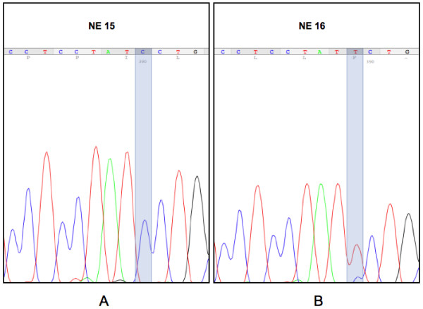 CYYR1 mutation in an NE tumor sample . Representative electrophoretograms of a sample with normal sequence NE 15 (A) and the mutated sample NE 16 (B), where a variation (apparently in heterozygotic form) in position 333 of CDS (T replaces C) leads to a P111S amino acid change.
