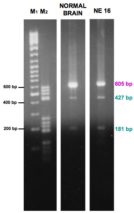 Enzymatic digestion of CYYR1 CDS RT-PCR products from normal brain and an NE tumor . Gel electrophoresis analysis of CYYR1 CDS RT-PCR products, from normal brain and NE 16, after PstI digestion. Expected size bands (CAG - form: 605 bp, CAG + form: 427 bp and 181 bp) were obtained in both samples. M1: GeneRuler marker, 500 ng; M2: DNA M5 marker, 250 ng.