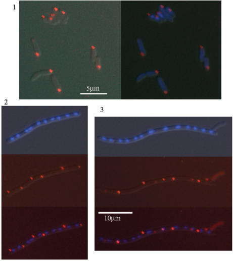 Fluorescence microscopy images of PyrH fluorescence within live E. coli cells. Panel 1: Preferential localization of PyrH-RFP foci (red) at the old cell pole in DY380 pyrH -RFP. Left image: merge of phase contrast and red fluorescence; right: same image including DAPI staining (blue) of DNA. Panels 2 and 3: Typical images of PyrH-mRFP1 fluorescence (red) and nucleoids (DAPI stained blue) in filamentous DY380 pyrH -mRFP1/ ftsZ -C ext cells (both at the same magnification), showing PyrH protein existing predominantly in foci beside the membranes, located at the poles and at positions of potential cell division.