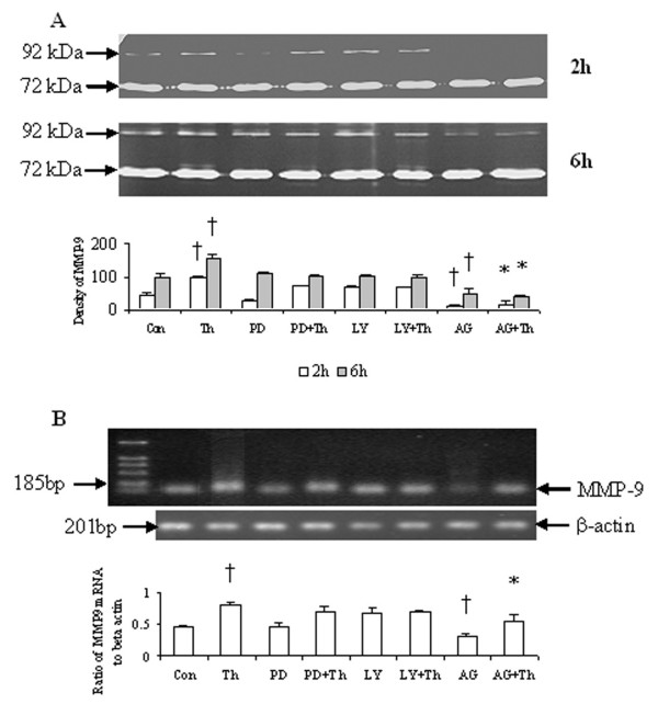 Effect of AG490 (AG), PD98059 (PD) and LY294002 (LY) on MMP-2 and MMP-9 activity release and MMP-9 mRNA expression in HDFs. ( A ) HDFs were incubated with AG490 (40 μM), PD98059 (50 μM) and LY294002 (40 μM) in the presence or absence of thrombin (Th, 5 U/ml) at 37°C for 2 h and 6 h, and MMP-2 and MMP-9 activities were detected with zymograph. ( B ) HDFs were incubated with AG490, PD98059 and LY294002 in the presence or absence of Th at 37°C for 6 h, and MMP-9 mRNA was detected by RT-PCR analysis. The relative levels of MMP-9 mRNA were expressed as the ratio to β-actin. The values shown are Mean ± SD for four separate experiments. Cells from each one of the four dermal fibroblast donors were used for one independent experiment. † P