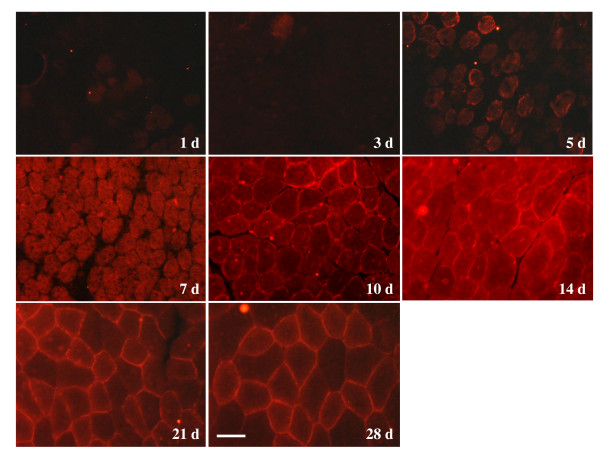 Immunohistochemistry of β-synemin in rat skeletal muscle after injection of cardiotoxin. For the first three days following injection, β-synemin was not detected in transverse muscle sections. β-synemin expression increased from day 5 up to day 14 although sarcolemmal expression appeared to be more prominent on days 21 and 28. Panels are labeled with regards to the number of days (d) following cardiotoxin injection. Bar = 50 μm