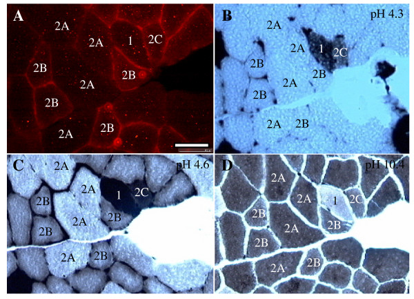 Immunohistochemistry of β-synemin and ATPase staining on muscle sections after injection with cardiotoxin. (A) 10 μm transverse muscle sections were immunostained with an antibody against β-synemin. (B-D) ATPase staining on serial sections was performed at pH 4.3 (B), pH 4.6 (C), and pH 10.4 (D). Type 1 fibers (labeled with a