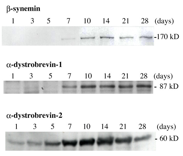 Immunoblot analysis for β-synemin, α-dystrobrevin-1 and -2 following the injection of cardiotoxin. β-Synemin and α-dystrobrevin-1 were detected after day 7, whereas α-dystrobrevin-2 was observed as early as day 1. To normalize for expression levels, immunoblots for β-synemin, α-dystrobrevin-1 and -2 are shown from representative, but different experiments. Approximate molecular weights are indicated on the right.