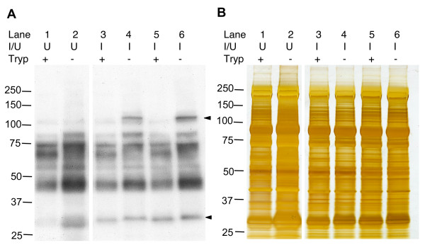 Western blot analysis of biotinylated P. chabaudi PESAs . P. chabaudi infected erythrocytes were obtained from two infected CBA mice by heart puncture and cultured for 6 hours to allow ring stage parasites to mature. Panel A . Western blotting of P. chabaudi infected erythrocyte membrane extracts prepared by osmotic lysis. Biotinylated proteins were detected using horseradish peroxidase-conjugated streptavidin. Solid arrowheads highlight infected erythrocyte-specific biotinylated proteins. Panel B . Silver stained duplicate gel of that shown in Panel A to confirm the cell surface specificity of trypsinization. U : uninfected erythrocyte, I : infected erythrocyte.