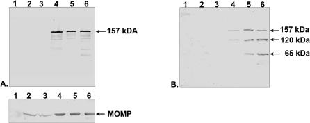 PmpD translation, processing, and secretion. McCoy cells infected with C. trachomatis serovar L2 were harvested at 6, 12, 24, 36, and 48 hours after infection and soluble and insoluble protein fractions separated. A. The insoluble fractions were loaded for equal <t>MOMP</t> amounts. B. The soluble fractions were loaded as described in METHODS. Both nitrocellulose membranes were reacted with antibodies against fragment 2 of PmpD. Lane 1, 0 h p.i. (uninfected cells). Lane 2, 6 h p.i. Lane 3, 12 h p.i. Lane 4, 24 h p.i. Lane 5, 36 h p.i. Lane 6, 48 h p.i. Reaction of MOMP used for the total protein normalization in the insoluble fractions, with anti-MOMP <t>pAb</t> is shown in a separate box. The quantity of MOMP was determined using the Packard Instrument OptiQuant software (version 03.10).