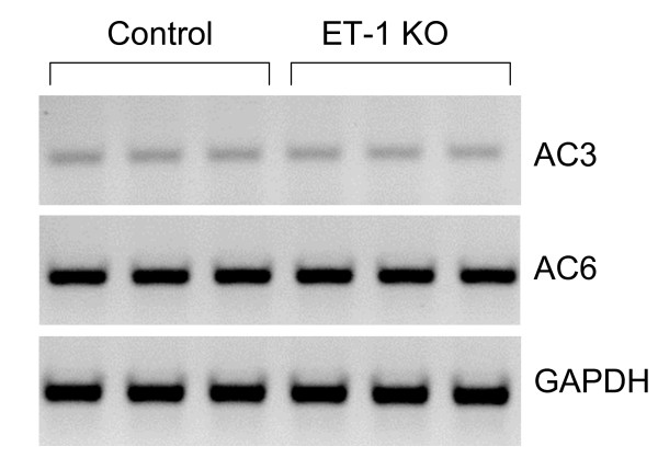 RT-PCR analysis of adenylyl cyclases 3 (AC3) and 6 (AC6) in floxed control and CD ET-1 KO IMCD. All results were normalized to GAPDH. A representative blot is shown (n = 5 total).