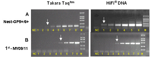 Comparative amplification of HPV-16 DNA with <t>Taq</t> DNA polymerase and with LoTemp™ HiFi ® DNA polymerase . Lanes 1–8: HPV-16 plasmid DNA template at 85 × 10 1 , 85 × 10 2 , 85 × 10 3 , 85 × 10 4 , 85 × 10 5 , 85 × 10 6 , 85 × 10 7 and 85 × 10 8 copies per milliliter. NC: negative control. M: molecular marker. Arrows indicate the lower limit of detection by nested PCR (A) and by the 1 st primary PCR (B) with <t>Takara</t> Taq DNA polymerase and LoTemp™ HiFi ® DNA polymerase, respectively.