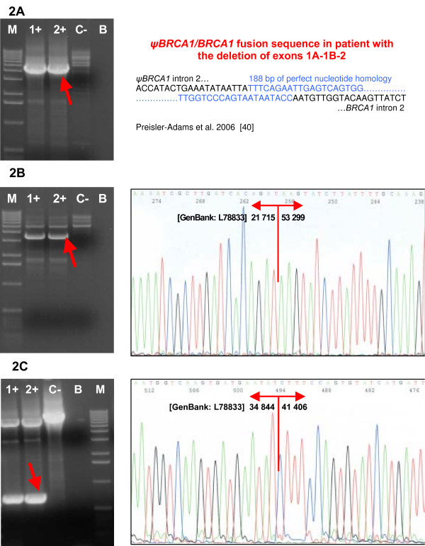 Confirmation and characterization of the rearrangements . (A) Confirmation of the deletion of exons 1A/1B-2 by long-range <t>PCR</t> and sequencing of the breakpoints. (B) Confirmation of the deletion of exons 5–14 by long-range PCR and sequencing of the breakpoints. (C) Confirmation of the deletion of exons 11–12 by long-range PCR and sequencing of the breakpoints. Lanes 1+, 2+, carriers of the deletion; lane C-, negative control (wt); lane B, blank; lane M, marker (Ready-Load™ 1 Kb <t>DNA</t> Ladder, Invitrogen).