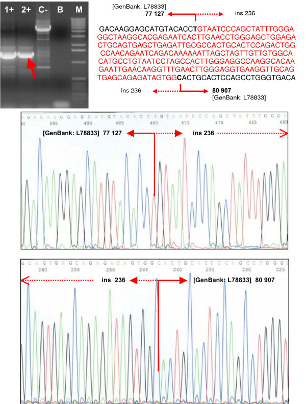 Confirmation and characterization of the rearrangements . Confirmation of the deletion of the exons 21–22 by long-range PCR and sequencing of the breakpoints. The deletion/insertion event was characterized as g.77128_80906del3779ins236. Lanes 1+, 2+, carriers of the deletion; lane C-, negative control (wt); lane B, blank; lane M, marker (Ready-Load™ 1 Kb DNA Ladder, Invitrogen).