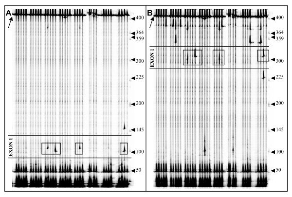 Detection of polymorphisms in <t>Cm-eIF4E</t> . Gel images from the IRD700 ( A ) and IRD800 ( B ) channels of LI-COR analyzer. Each lane displays the 400 bp amplified product on Intron4-F/Full-cDNA3'-R primer combination digested with endonulcease ENDO-I . Heteroduplexes were produced after melting and annealing PCR products with the <t>DNA</t> of the reference genotype (cultivar Védrantais). A black arrow on the top left of each image indicates the position of homoduplex DNA. Arrows on the right of each panel indicate the molecular weight marker in bp. Cleaved products, indicated by boxes, correspond to sequence polymorphisms in exon 1. True polymorphisms should give rise to two complementary bands, one on each fluorescence channel.