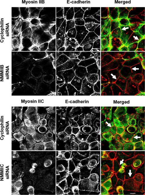 siRNA-mediated knock-down of either NMMIIB or NMMIIC has no effect on reformation of initial adherens-like junctions. Control, NMMIIB or NMMIIC siRNA-transfected SK-CO15 monolayers were subjected to overnight calcium depletion to disrupt cell-cell adhesion. Reformation of the initial adherens-like junctions was triggered by transferring cells for 1 h into the HCM. Similarly to control cells, NMMIIB and NMMIIC knock-down rapidly translocate E-cadherin (red) to areas of cell-cell contacts (arrows). Bar, 10 µm.
