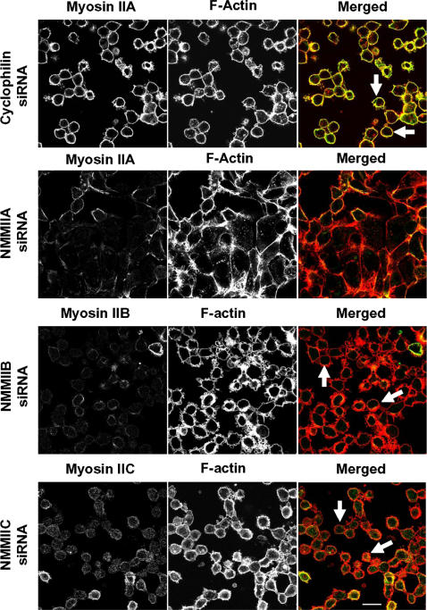 siRNA-mediated knock-down of NMMIIA inhibits cell contractility triggered by calcium-depletion. Control, NMMIIA, NMMIIB, and NMMIIC-deficient SK-CO15 monolayers were subjected to 1 h calcium depletion, and their overall cell shape was analyzed by F-actin labeling. Calcium depletion causes rapid rounding of control, NMMIIB, and NMMIIC-deficient cells (arrows). In contrast, cell rounding was significantly attenuated in cells monolayers subjected to NMMIIA knock-down. Bar, 20 µm.