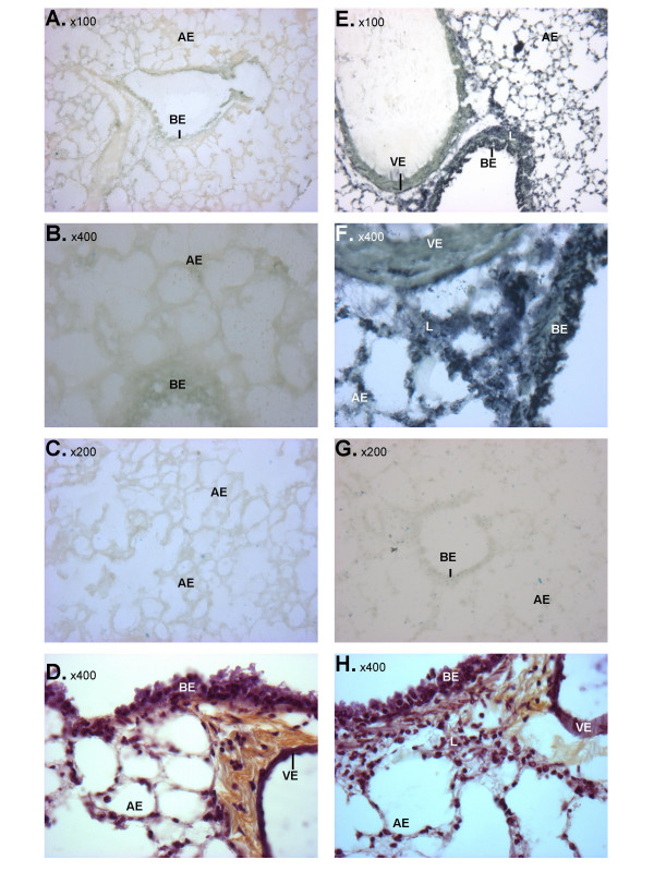 LPS-induced changes in miRNA-223 expression in the mouse lung. Lungs were removed from saline-challenged (A-D) and LPS-challenged (E-H) mice at 3 hrs post-challenge and tissue slices were examined by in situ hybridisation using either a miRNA-223-specific (A, B, E, F) or scrambled (C, G) LNA probe, or histologically following cresyl violet staining (D, H). Bronchial (BE) and alveolar (AE) epithelia, as well as the vascular endothelium (VE) and leukocytes (L) are indicated.