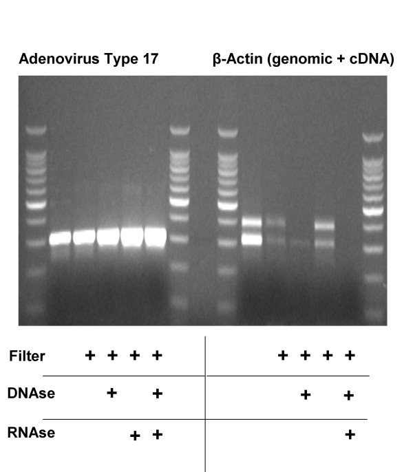 Filtration and Nuclease Treatment Improves Viral DNA Amplification by Removing Host DNA and mRNA . Human plasma was inoculated with 1 μl of an Adenovirus Type 17 suspension, filtered and incubated for 2 hrs with either 10 u DNAse or 5 u RNAse as indicated. Remaining nucleic acids were purified with the QiaAmp UltrasSens Virus Kit and subjected to 1 st strand cDNA synthesis and 50 cycles PCR using primers specific for either Adenovirus Type 17 or human β-Actin DNA (upper band; primers cross an intron) or cDNA (lower band). Amplicons were then visualized on an ethidium bromide impregnated agarose gel.