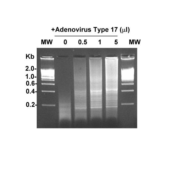 5'-VVVVVVVVAA-3' Primers Enable Random Multiplex Amplification of DNA from Human Plasma Inoculated with Adenovirus Type 17 . 1 ml of human plasma was inoculated with 0–5 μl of suspended Adenovirus Type 17 (ATCC), filtered and incubated for 2 hours with nucleases. Remaining nucleic acids were purified with the QiaAmp UltrasSens Virus Kit (Qiagen) and subjected to the random multiplex PCR with 5'-VVVVVVVVAA-5' primers as detailed in the Methods section. Amplicons were then visualized on an ethidium bromide impregnated agarose gel.