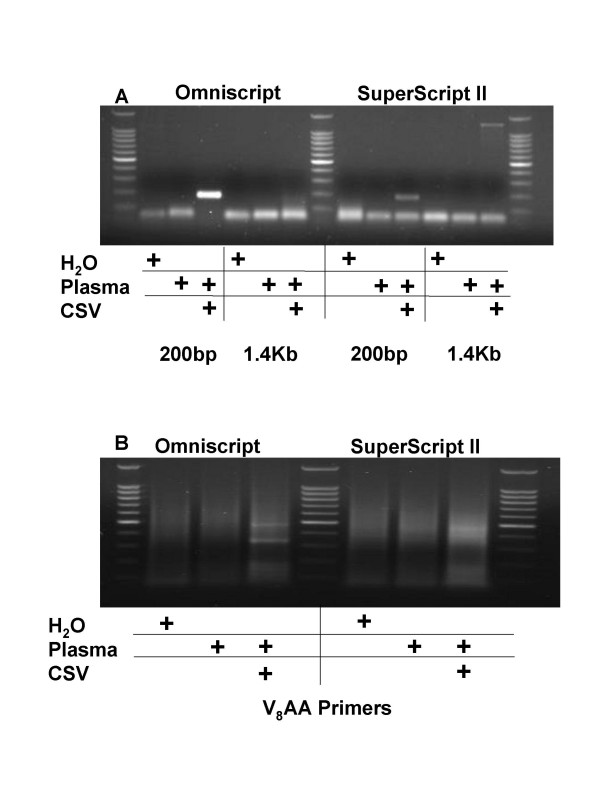 5'-VVVVVVVVAA-3' Primers Enable Random Multiplex Amplification of Viral RNA from Human Plasma Inoculated with Coxsackie Virus A7 . A . 1 ml of human plasma was inoculated with 5 μl of suspended Coxsackie Virus A7 (ATCC), filtered and incubated for 2 hours with nucleases. Remaining nucleic acids were purified with the QiaAmp UltrasSens Virus Kit (Qiagen) and subjected to first strand cDNA synthesis using either Omniscript or Superscript reverse transcriptase. Virus-specific primers were used to amplify either a 200 bp or a 1.4 Kb portion of the viral genome. B . The same samples were then subjected to random multiplex PCR with 5'-VVVVVVVVAA-5' primers as detailed in the Methods section. Amplicons were then visualized on an ethidium bromide impregnated agarose gel.