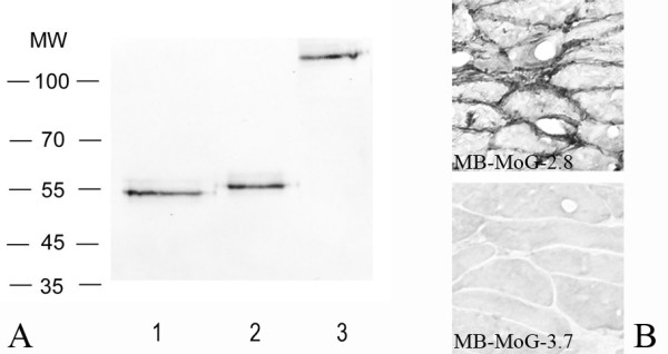 A, Western blotting of the miniantibody MB-MoG-2.8 with reducing agents (lane 2), treated with glycosidase PNGase F (lane 1), and in not reducing not denaturing conditions (lane 3). B, Immunohistochemistry performed on histological section of mouse muscle tissue with the miniantibodies constructs MB-MoG-2.8 and 3.7. Secondary antibodies: biotinylated mAb SV5 followed by streptavidin conjugated with alkaline phosphatase (western blotting) or horseradish peroxidase (immunohistochemistry).