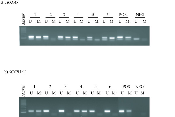Representative methylation-specific polymerase chain reaction (MSP) results from primary ovarian carcinomas . PCR products in lane U indicate the presence of unmethylated alleles whereas PCR products in lanes M indicate the presence of methylated alleles. Panel A illustrates HOXA9 (the upper bands represent MSP products, whereas the lower bands are excess primers). Panel B illustrates SCGB3A1 . Abbreviation: Pos, positive control (DNA from normal blood is used as control for unmethylated samples, and in vitro methylated DNA is used as control for methylated samples); Neg, negative control (template replaced by water); Lane 1–6, individual ovarian carcinomas; 100 bp DNA marker from Promega Corp, Madison, WI, USA. The illustration has been processed from a photo including more samples. Hence, the controls have been moved from their original position and pasted adjacent to the selected samples shown here.