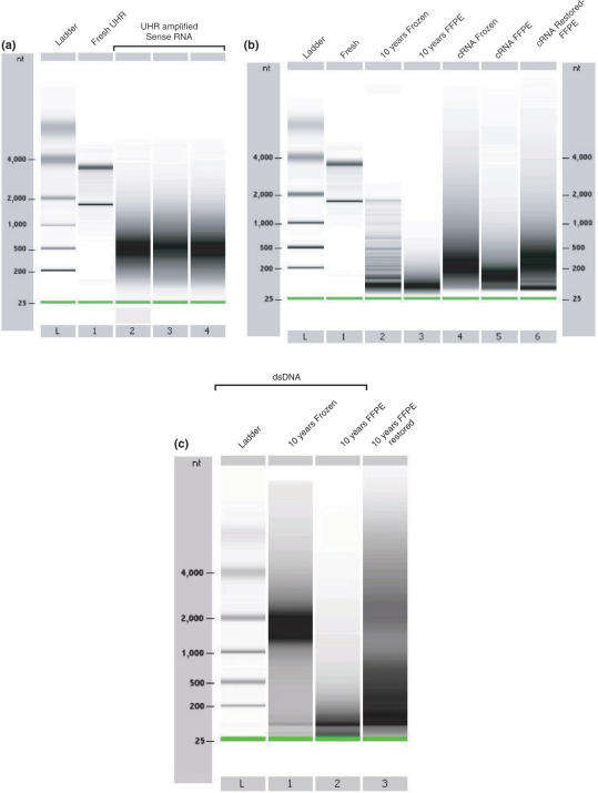 Size distribution of mRNA, cRNA and dsDNA on Agilent 2100 Bioanalyzer 6000 Nanochips. ( a ) Universal Human Reference (UHR) RNA and sense-RNA template library after IVT-amplification. Lane L displays the ladder (25, 200, 500, 1000, 2000 and 4000 nt). Lane 1 contains fresh UHR RNA. Lanes 2, 3 and 4 display three individual IVT-amplifications of sense-RNA using total RNA displayed in lane 1. ( b ) Size distribution of fresh, frozen, FFPE-RNA and amplified cRNA. Lane L displays the same ladder as observed in (a). Lane 1 contains fresh human breast RNA. Lane 2 contains total RNA from the 10-year-old frozen human breast cancer tissue. Lane 3 contains total RNA from the matched 10-year-old FFPE human breast cancer tissue. Lane 4 contains cRNA obtained by IVT-amplifications of 10-year-old frozen RNA (lane 2). Lanes 5 contains cRNA obtained by direct IVT-amplification of the 10-year-old FFPE-RNA (lane 3). Lanes 6 contains amplified cRNA obtained by CT-RT and IVT-amplification of the same 10-year-old FFPE-RNA. ( c ) Size distribution of double-stranded DNA on a Bioanalyzer 2100 Agilent nanochip. Lane L displays the ladder. Lane 1 displays dsDNA obtained from 10-year-old frozen RNA. Lane 2 displays dsDNA obtained from 10-year-old FFPE-RNA. Lane 3 shows dsDNA obtained after CT-RT and double-strand DNA synthesis of the same 10-year-old FFPE-RNA. (See Supplementary Data for fragmented RNA profiles)