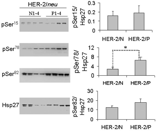 Western blotting of Hsp27, pSer 15 , pSer 78 and pSer 82 . Twenty μg proteins from each of 4 HER-2/ neu positive and 4 -negative tumour samples were separated by 10% SDS-PAGE and transferred onto PVDF membranes. After blocking, the membranes were incubated with the respective primary antibodies (anti-Hsp27, anti-pSer 15 , anti-pSer 78 and anti-pSer 82 ), followed by hybridization to HRP-conjugated secondary antibody. The chemiluminescent signals emitted were captured with the MULTI-GENIUS Bio-Imaging System and signal intensities were analyzed using the GeneTools software (Syngene). The relative phosphorylation levels of pSer 15 , pSer 78 and pSer 82 presented (histograms, right) are the respective ratios of signal intensity probed with phosphorylation site-specific antibody to signal intensity probed with anti-Hsp27, for each of the three pSer residues. Data with ± SD (standard deviation) are expressed as the average of triplicate experiments. * p