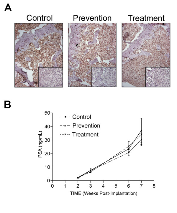 A : Immunohistochemical analysis of <t>RANKL</t> in <t>C4-2</t> tumored tibiae of control, prevention, and treatment groups. Paraffin-embedded C4-2 tumored tibiae of the SCID mice were sectioned and stained for RANKL (negative control staining is shown in inset box). The tumor cells stained positively for RANKL. B : Blood was collected to determine serum PSA levels by IMx Total PSA assay. Serum PSA levels were not significantly different between the C4-2 control with PBS injections (control), C4-2 with a concomitant subcutaneous injection of huRANKL MAb (5 mg/kg once a week) at implantation (prevention group), or C4-2 with a subcutaneous injection of huRANKL MAb (5 mg/kg biweekly, starting 3 weeks after implantation of C4-2 cells) (treatment group). Results are presented as mean ± SE.