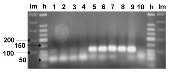 Transcription analysis of pedA . pedA -reverse transcription-PCR on cDNA from P. acidilactici bac- (1, 2, 3) or UVA1 (7, 8, 9) after 1 h 30, 2 h 30 and 3 h 30 of growth, respectively, and from P. acidilactici DSM 20284 T (4) or UL5 (6) and P. pentosaceus DSM 20336 T (5) after 2 h 30 of growth. 10: water instead of DNA. lm: low molecular weight DNA ladder (in bp). h: Tridye 100-bp DNA ladder (in bp). Expected product size: 100 bp.