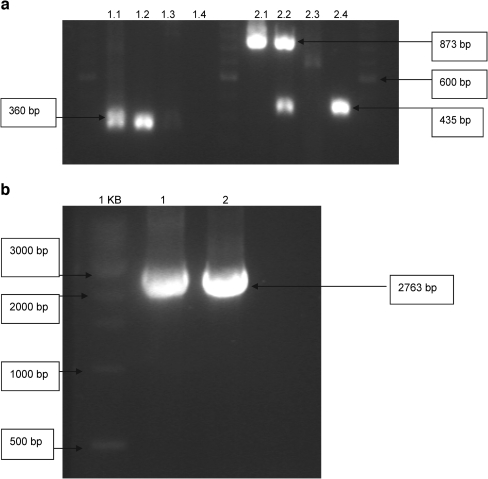 """PCR controls. The PCR controls were performed as described in """"PCR controls."""" a Lanes 1, 6 and 11 contain a 100-bp ladder. PCR I was performed with primers on the backbone of the p406 plasmid and on the ARE 2 sequence. Lanes 2–5 are PCR I on the p406-ARE 2 - CYC1 -yEGFP reporter vector, the DNA that was isolated from the yeast transformant, the empty p406- CYC1 plasmid, and the DNA that was isolated from the empty yeast host (the nontransfected yeast cells), respectively. PCR II was performed with primers on the CYC1 promoter and the CYC1 terminator. Lanes 7–11 are PCR II on the reporter vector, the DNA from the yeast transformant, the empty p406- CYC1 plasmid, and the DNA from the empty yeast host respectively. b Lane 1 contains a 1-kb ladder. PCR III was performed with the primers on the human androgen receptor gene. Lanes 2–4 are PCR III on the p403-GPD-hAR expression vector, the DNA from the yeast transformant, and the DNA from the empty yeast host, respectively. yEGFP yeast enhanced green fluorescent protein"""