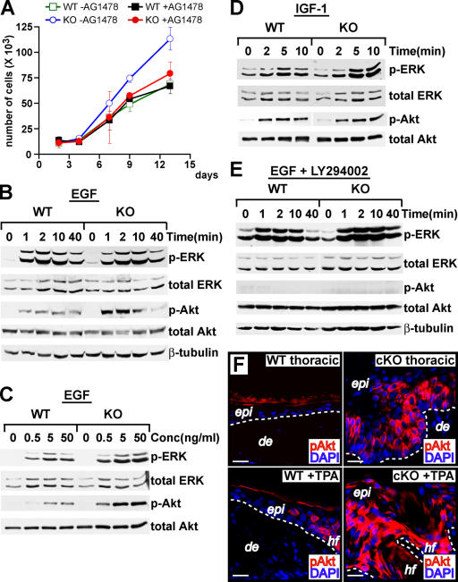 In vitro and in vivo superactivation of the PI3K–Akt pathway in an EGF-dependent and AP-2α null–dependent fashion. (A) Primary WT and KO keratinocytes were cultured ± the EGFR-specific protein kinase inhibitor AG1478 without the addition of fibroblast feeder cells after the original plating. Growth curves represents three independent experiments performed in duplicate (see Separation of epidermis…transfections). Error bars represent SD for these experiments. (B) Keratinocytes were serum-starved for 24 h and at t = 0, 50 ng/ml EGF was added. At the times indicated, cell extracts were prepared, proteins were resolved by SDS-PAGE, and immunoblot analyses were conducted with the antibodies indicated at right. The antibodies against the active forms of Erk1/2 and Akt (p-Erk and p-Akt, respectively) are phosphospecific antibodies and do not recognize the inactive states of the kinases. β-tubulin antibodies are used as a loading control, along with ponseau red staining of the blots (not depicted). Note EGF-dependent superactivation of Akt and Erk1/2 in AP-2α –null keratinocytes. (C) Same experiment as in B, except 10× increments of EGF concentrations (0–50 ng/ml) were used, and extracts were harvested at t = 2 min. (D) Same experiment as in B, but insulin growth factor 1 (IGF1) was added at 50 ng/ml. Note that in contrast to EGF, IGF1 did not generate enhanced activated Akt in KO relative to WT cells. (E) Same experiment as in B, but the PI3K-specific inhibitor LY294002 was added at 20 μM. Note that the activation of Akt, but not Erk1/2, is dependent on PI3K activation. (F) Antiphospho-Akt staining of frozen sections (8 μm) from (top) lesional KO and WT thoracic skins and (bottom) TPA-treated KO and WT back skins. Note the superactivation of Akt in KO skin regions that are lesional and that correlate with elevated EGFR ligand expression. De, dermis; epi, epidermis; hf, hair follicle. Dotted lines denote dermo–epidermal borders. Bars, 20 μm.