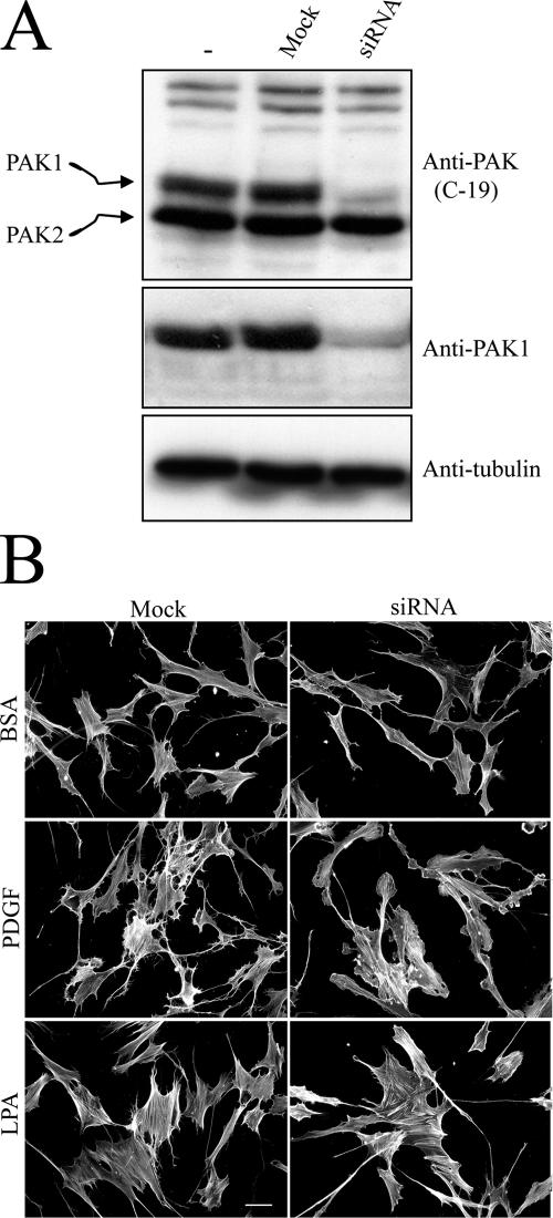 PAK1 silencing in human fibroblasts and cell morphology. (A) Cells were transfected for 12 h with 700 nM siRNA or sense RNA only (Mock) and cultured for an additional 24 h in growth medium without siRNA. Extracts were prepared and subjected to SDS-PAGE and immunoblotted to analyze levels of PAK1, PAK2, and tubulin. (B) PAK1-silenced and mock-transfected cells were harvested and incubated for 1 h on collagencoated glass coverslips in DME containing 5 mg/ml BSA and 10 μM LPA or 50 ng/ml PDGF as indicated. At the end of the incubation, samples were fixed and stained for actin. Bar, 50 μm.