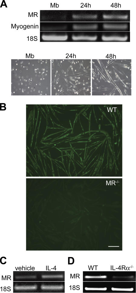 MR is expressed in muscle cells during myoblast fusion. (A) Primary myoblasts (Mb) were induced to differentiate for 24 or 48 h. MR mRNA was analyzed by RT-PCR. Myogenin mRNA was assessed as a marker of myogenic differentiation. Phase-contrast images of muscle cells are shown to illustrate fusion progress at each time point. MR, 390 bp; Myogenin, 266 bp; 18S, 488 bp. (B) Representative images of muscle cells after 24 h of differentiation immunostained with an antibody against MR. Bar, 50 μm. (C) Primary myoblasts were differentiated for 24 h and subsequently treated with vehicle or 10 ng/ml IL-4 for 24 h. MR mRNA was analyzed by RT-PCR. (D) MR mRNA expression in WT or IL-4 receptor α-null (IL-4Rα −/− ) myotubes after 48 h in DM was examined by RT-PCR. MR, 390 bp; 18S, 488 bp. Representative ethidium bromide staining of agarose gels is shown with 18S ribosomal RNA as an internal control for all RT-PCR analyses. All data are indicative of results from three independent cell isolates.