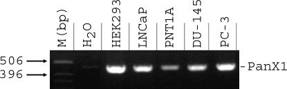 Pannexin1 (PanX1) mRNA is ubiquitously expressed in prostate cell lines. 2% agarose gel showing the expression of the PanX transcripts in human prostate cell line: LNCaP, PNT1A, DU-145, and PC-3, as well as in HEK-293 cells. A no-template control (H 2 O) was also run with the PCR samples, where the cDNA was replaced with water.