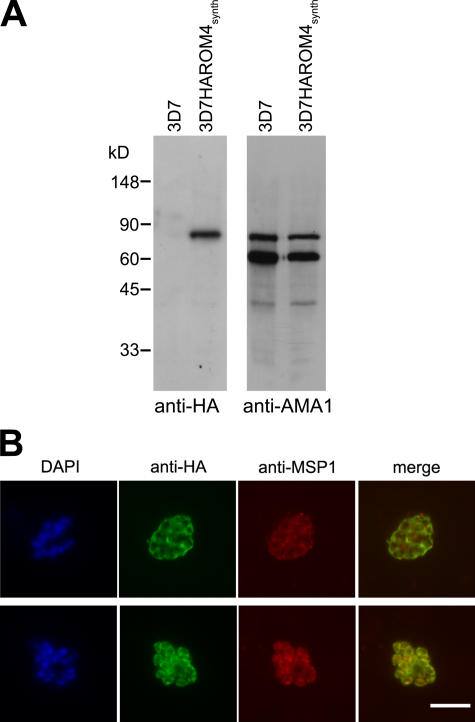 PfROM4 is a merozoite plasma membrane protein. (A) Western blot showing extracts of parental 3D7 and 3D7HAROM4 synth probed with mAb 3F10 (anti-HA) and polyclonal anti-AMA1 (loading control). The size of the anti-HA–reactive species detected only in 3D7HAROM4 synth is close to the predicted mass (90.4 kD) of HA-tagged PfROM4. (B) IFA of mature nonsegmented (top) and fully segmented (bottom) schizonts of 3D7HAROM4 synth , dual labeled with mAb 3F10 (anti-HA; green) and mAb 1E1 (anti-MSP1; red). The DAPI signal (blue) is not included in merged images for clarity. Bar, 5 μm.