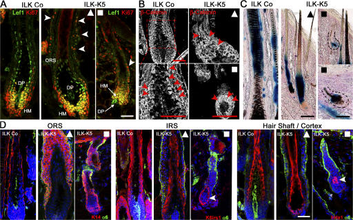 ILK-K5 HFs show normal β-catenin stability and hair-specific differentiation. (A) Control and mutant 2-wk skin sections stained for Ki67 and Lef1 show an increased number of Ki67+ cells in the ORS (arrowheads), yet retained Lef1 expression in the HM and DP of ILK-K5 HFs. (B) Control and mutant 2-wk skin sections stained for β-catenin revealed nuclear β-catenin (arrowheads) in precortical HM and proximal HS cortex in both control and long (▴) and short (▪) ILK-K5 HFs. (C) BatGal reporter mice were intercrossed with ILK-K5 and control animals. LacZ activity is present in precortical HM and HS cortex of both control and ILK-K5 HFs. (D) Immunostaining of K14 for the ORS, of keratin K6irs1 for the IRS, and of keratin hHa1 for HS cortex and α6 integrin. ILK-K5 HFs revealed the presence of a multilayered K14+ ORS. K6irs1 and hHa1 were expressed but mislocalized in short ILK-K5 HFs (arrowheads). Bars, 50 μm.