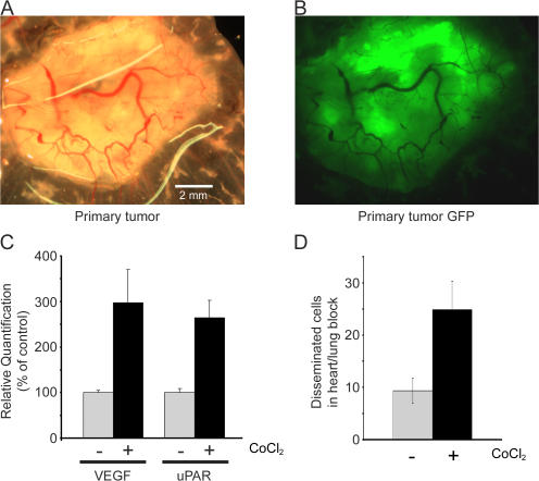 CoCl 2 treatment promotes MDA-MB-468 cancer cell dissemination from CAMs. GFP-expressing MDA-MB-468 cells were inoculated onto CAMs at 9 d. Tumors were allowed to develop for 11 d. The cells on the CAMs were treated daily with 25 μl of 100 μM CoCl 2 (black bars) or vehicle (gray bars). (A) Primary tumors were photographed on a stereomicroscope. (B) GFP-expressing cells were imaged by fluorescence microscopy. (C) Tumors from some eggs were harvested 4 d after inoculation. RNA was isolated and analyzed by qPCR to determine levels of VEGF and uPAR mRNA. mRNA levels were standardized against the levels present in vehicle-treated tumors (mean ± SEM; n = 3). (D) Chick embryos were harvested 11 d after inoculation of tumor cells on the CAMs. The number of GFP- expressing cells/cell clusters in the heart–lung block was determined by fluorescent microscopy (mean ± SEM; n = 9).