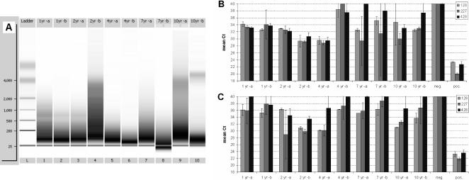 Fragmentation state and RT-PCR performance of RNA from tumor samples. RNA was isolated from individual 10 µm sections of FFPE tumor samples of different age (1–10 years). Fragmentation state was analysed by capillary electrophoresis (A). RNA performance was tested in 2-step real-time RT-PCR using assays directed against the human TBP gene, using either a mix of random and oligo-dT primers for cDNA synthesis (B), or oligo-dT alone (C).